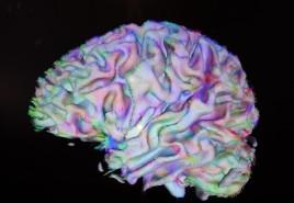 Cambridge - MIT Museum - Expo sur le cerveau